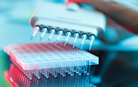 Fibrocell Reports Positive Results of Phase 1/2 Trial of FCX-007 Gene Therapy for RDEB