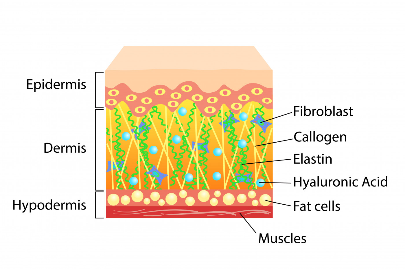 RDEB Wounds Heal Better with Fibroblast Skin Injections in Study